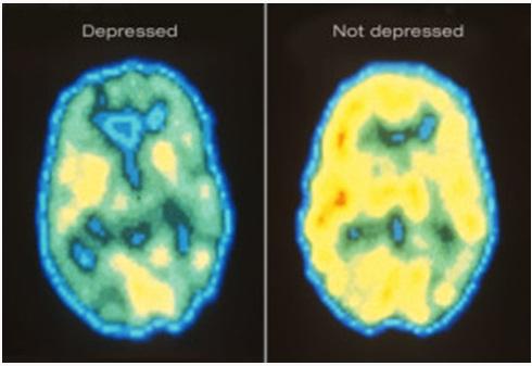 حقائق مثيرة قد لا تعرفها عن الاكتئاب