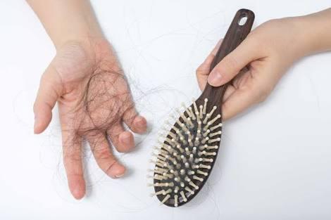 Cara Mengatasi Rambut Rontok Untuk Mencegah Kebotakan
