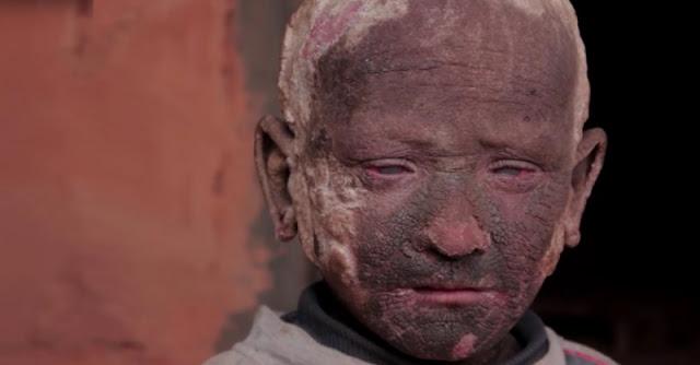 Cậu bé mắc căn bệnh 'hóa đá' kỳ lạ, ai nấy đều kỳ thị, rồi một ngày điều kỳ diệu xuất hiện…