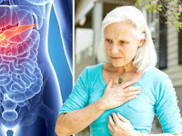What Are The Symptoms Of Pancreatic Cancer In A Woman