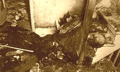 Combustion espontanea caso de  caso de Robert Francis Bailey