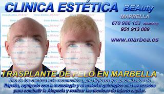 implante PELO MARBELLA Clínica Estética  injertos capilar mujeres  o para hombres o Marbella y en Málaga: Te ofrecemos la mayor calidad de nuestroservicio con los mejores