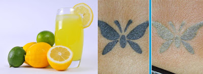 Tattoo Removal With Lemon Juice Picture After and Before