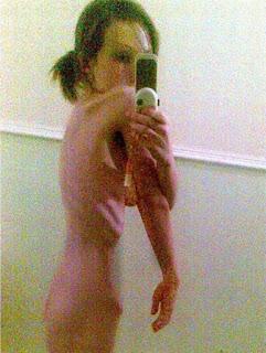 Megan Armer anoreksia
