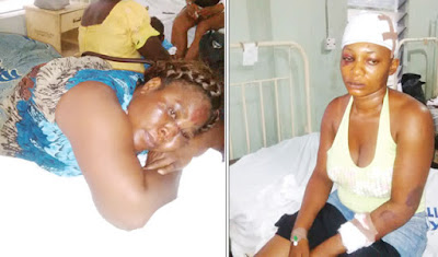 Survivors: Eno Etim (left) and Emem Akpanitiat at the St. Luke's General Hospital, Uyo, Akwa Ibom State…on Sunday.
