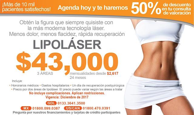 Paquete de liposuccion laser Guadalajara