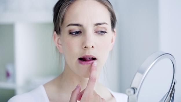Cara Mengetahui Masalah Kesehatan dari Kondisi Bibir, Berikut Cara-Caranya...