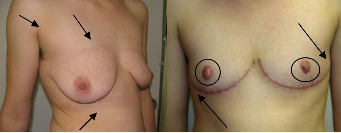Puckered Nipples 25