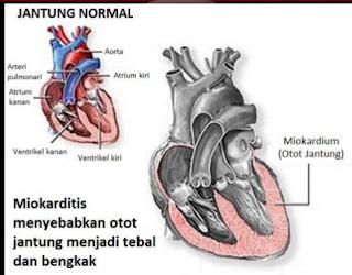 Miokarditis, Penyakit Jantung yang Menyerang Anak Muda