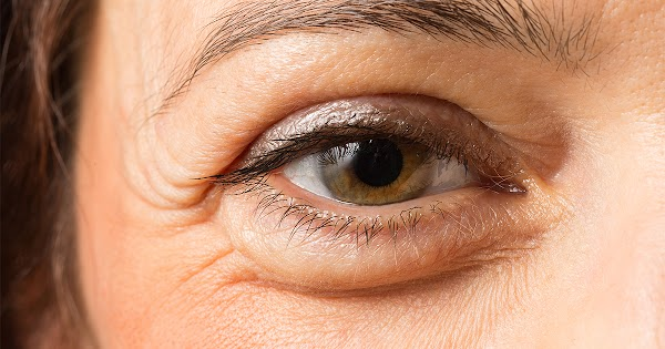 Home Remedies To Get Rid Of Puffy Eyes In Hindi Language