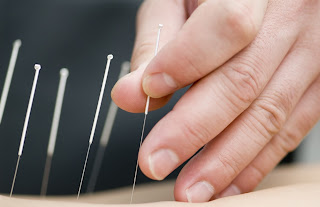 Best Acupuncture Clinic in Delhi NCR