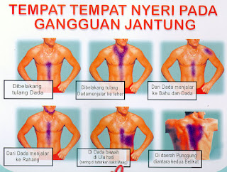 Herbal Jantung Bengkak Surabaya