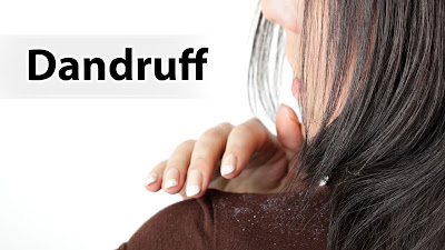 Dandruff Treatment at Home - 18 Home Remedies.