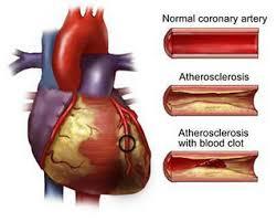 Beware of Coronary Heart Disease In Women