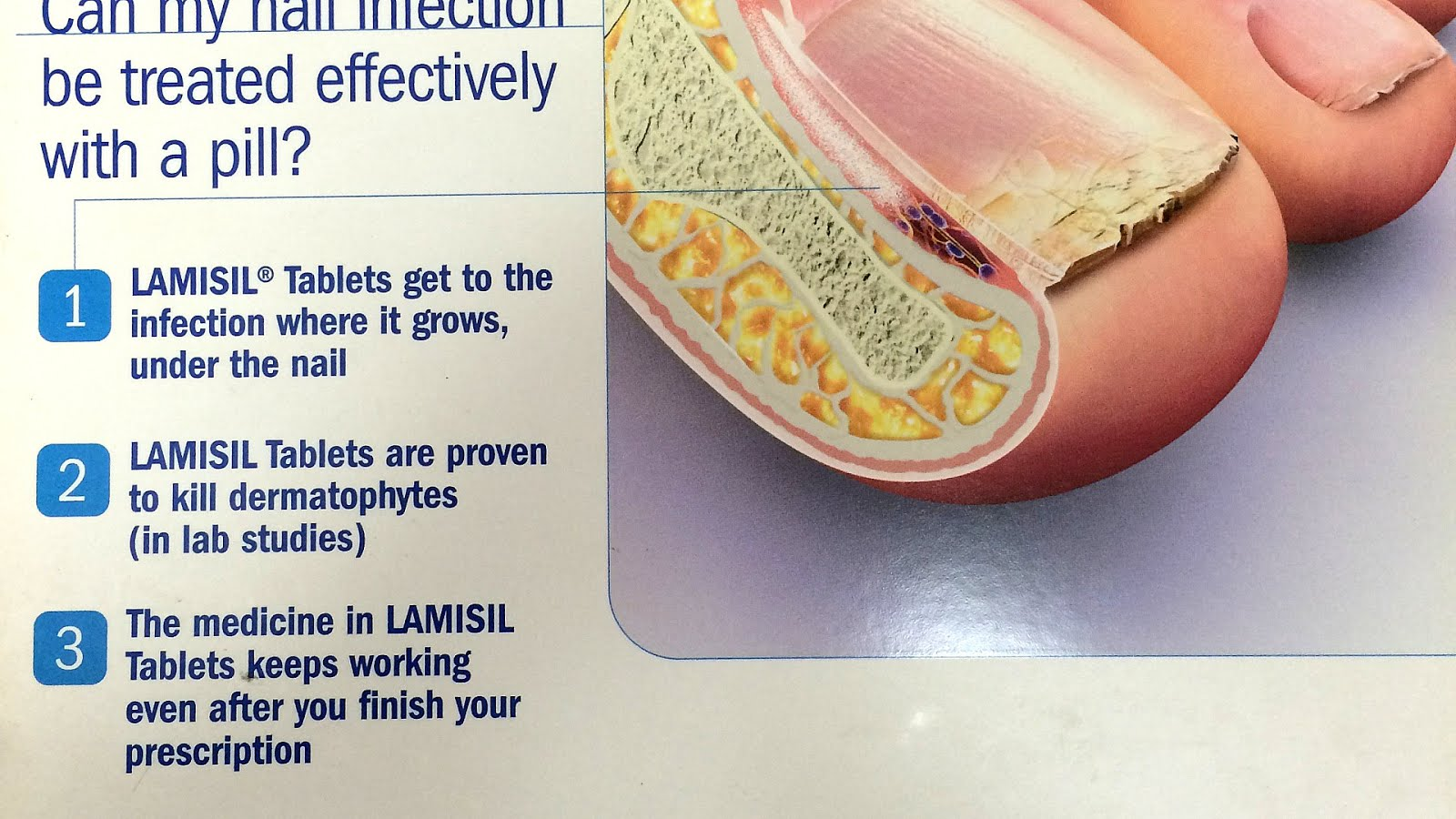 Terbinafine - Side Effects Lamisil - Effect Choices