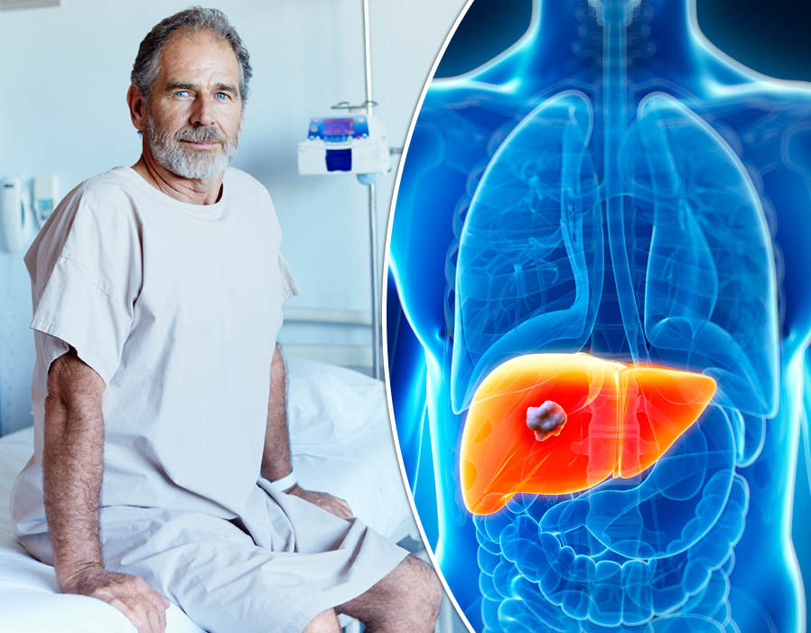 Liver Cancer Symptoms In Males