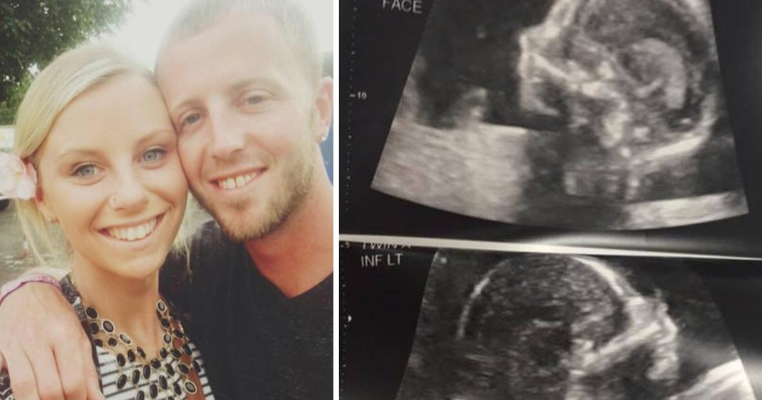 Έγκυος, πήγε για το καθιερωμένο υπερηχογράφημα. Όταν κοίταξε την οθόνη; Η καρδιά της σταμάτησε!