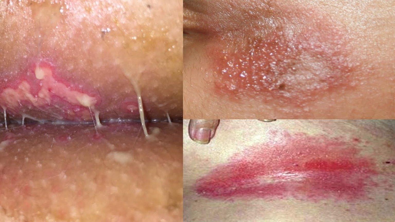 dolor en los ganglios linfáticos en el área de la ingle