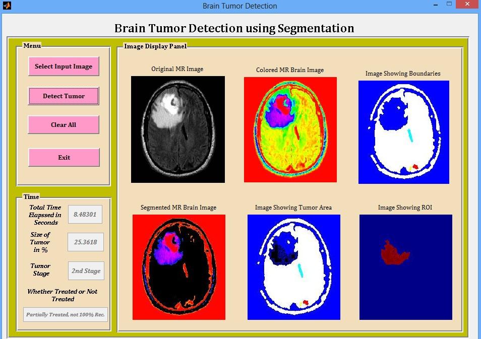 brain tumor detection using matlab source code