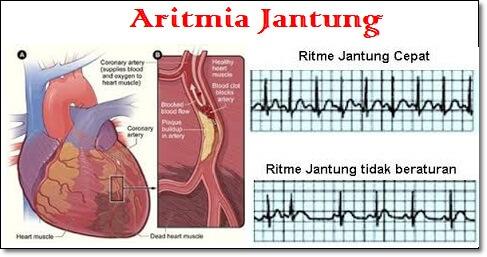 Nama Obat Aritmia Jantung Di Apotik