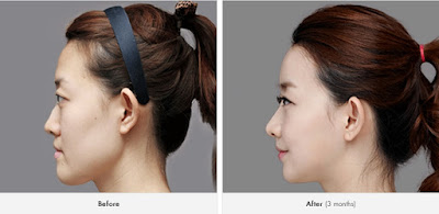 before and after forehead augmentation in Wonjin