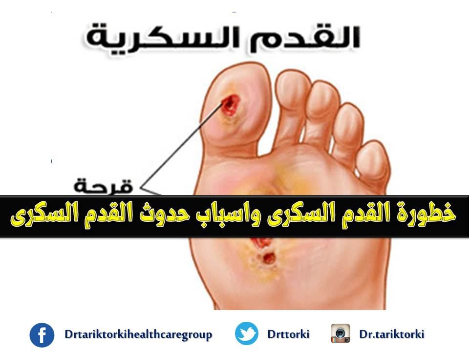 87d73919f عيادة العناية بالقدم السكرى بالرياض: خطورة القدم السكرى واسباب حدوث ...