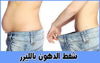 تجارب شفط الدهون في جده