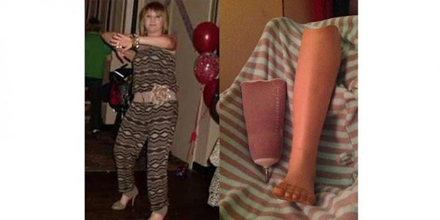 Wanita Ini Kehilangan kakinya lantaran Pakai Sepatu Hak 12 Sentimeter