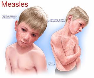 Bahaya Penyakit Campak Gejala, Dan Penyebabnya