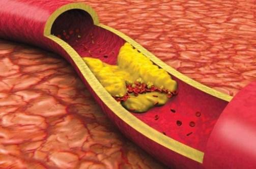 دراسة 5عوامل تؤدي الى إرتفاع مستوى الكوليسترول في الدم.