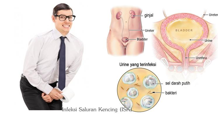 Image Result For Cara Menyembuhkan Infeksi