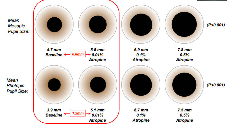 Atropine and Myopia Control: The ATOM 2 Study - EyedolatryDilated Pupils Drugs What Mm