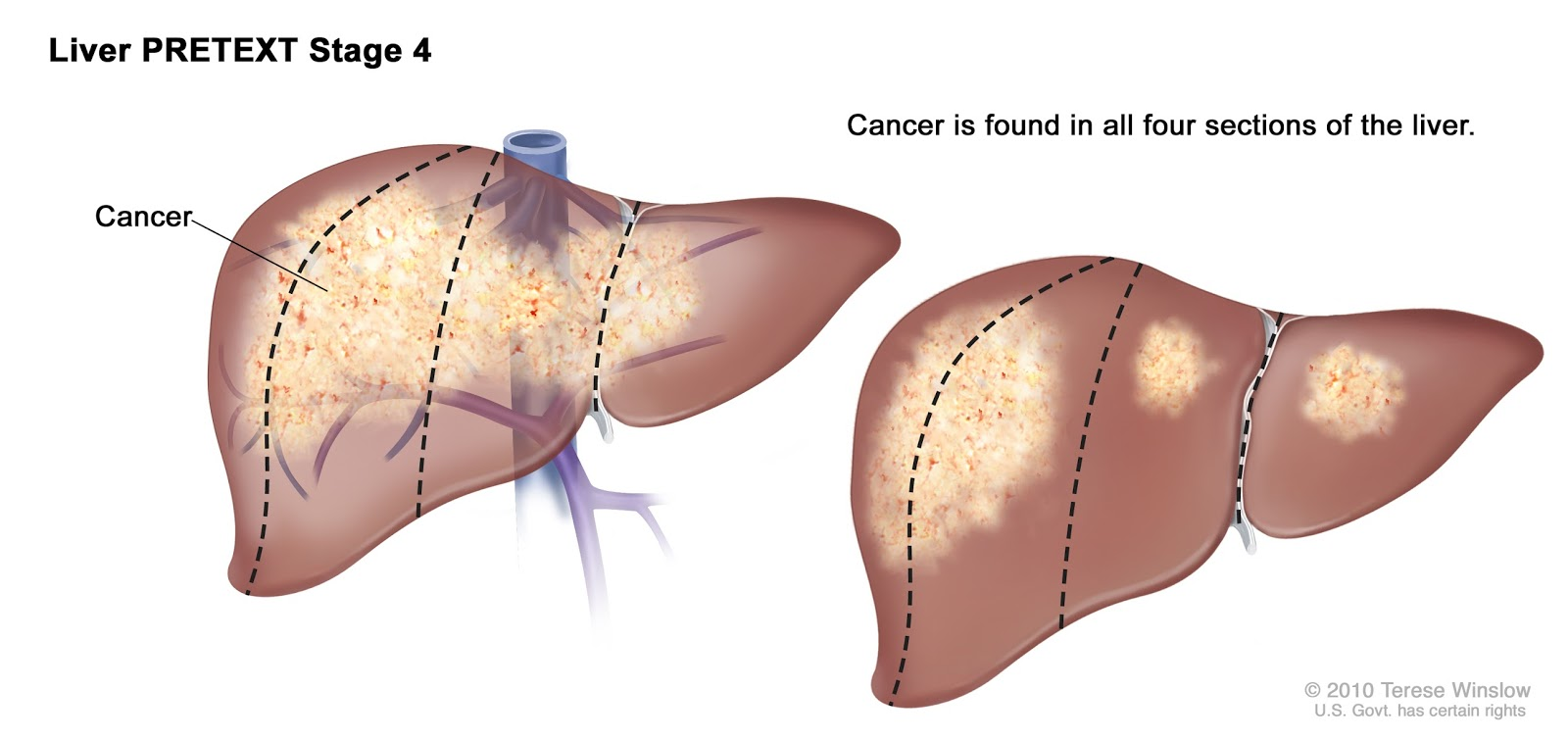 Sign and Symptoms of Liver Cancer Stage 4