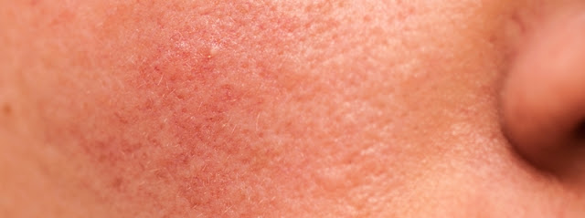 What is Actinic Keratosis (AK)?