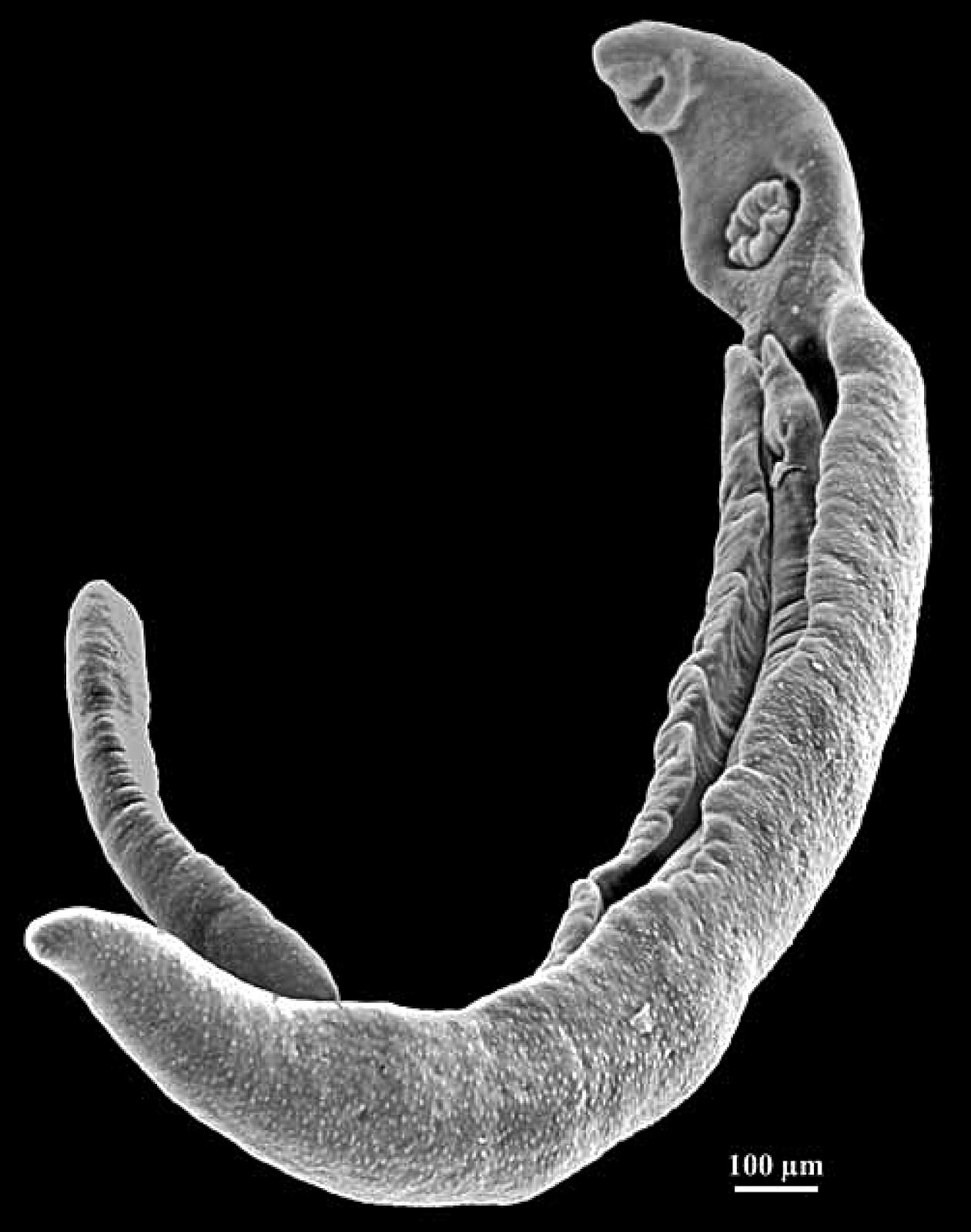 parasite - photo #23