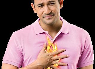 حرقة المعدة  Heartburn