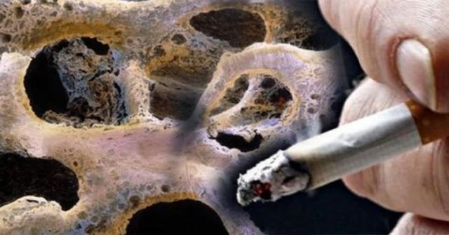 Peringatkan Para Suami, Ini 6 Bagian Tubuh Yang Bakal Rusak Akibat Merokok