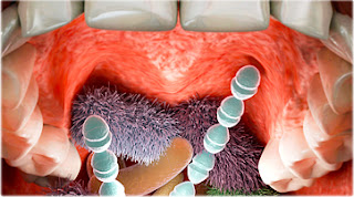 http://img.webmd.com/dtmcms/live/webmd/consumer_assets/site_images/rich_media_quiz/topic/rmq_germs_in_your_mouth/getty_rf_photo_of_mouth_bacteria.jpg