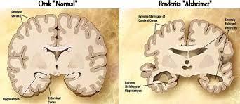 Cara menyembuhkan alzheimer