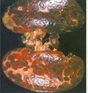 Thận sưng to, trên mô có mảng tròn đỏ hoặc vuông, tụ máu, có khi có chấm xuất huyết.