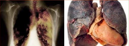 Resep Obat Alami: Obat Herbal Kanker Paru-Paru