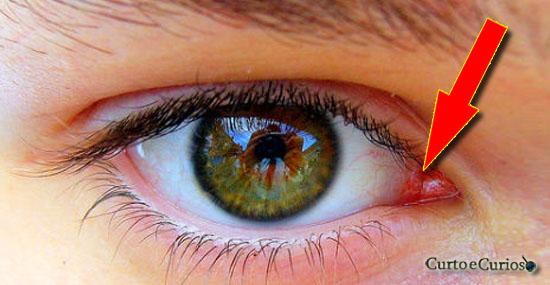 Você nem imagina o que é aquela coisinha rosa no canto do seu olho...