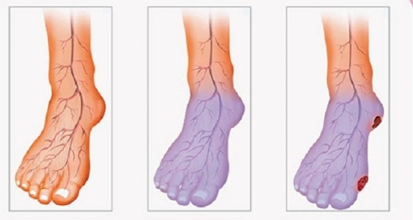 Poor Blood Circulation, Cold Hands And Legs? Here Is What You Can Do To Solve This Problem
