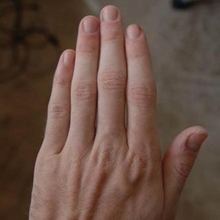 Người có bàn tay có nhiều khe hở và gầy dài thì sao