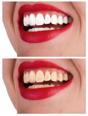Trucos para blanqueamiento dental casero