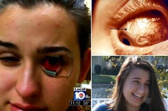 Bahaya Lensa Kontak