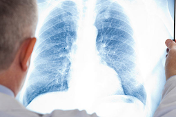 The Most Incredibly Ignored Answer for How Does a Doctor Diagnose Mesothelioma