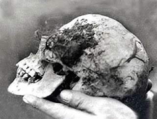 Bella's skull found in the Wych Elm