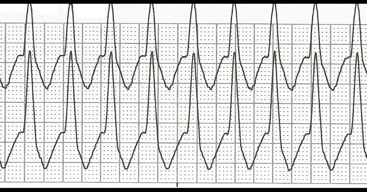 Float Nurse: EKG Rhythm Strip Quiz 151