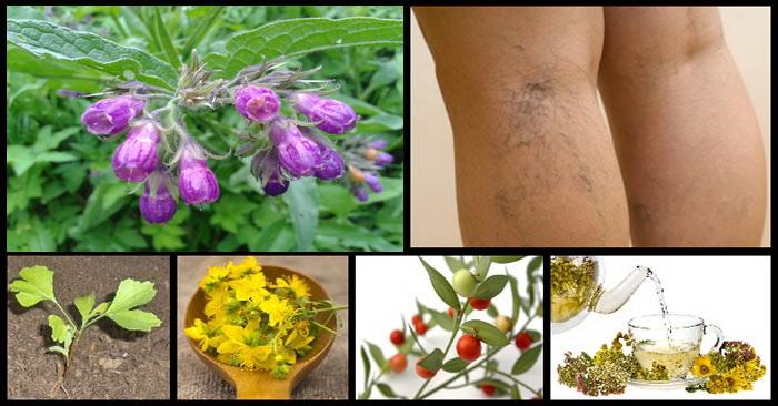 plante cu plante varicoase